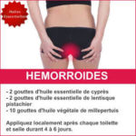 Cryotherapy for hemorrhoids: a guide to surgery | Hemorrhoid Remedies + [Hemorroides solution| Hémorroïdes traitements| Hemorroides douleurs| Souffrir d'hémorroides| Hemorroides soins ]